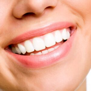 Blanchiment des dents - Teeth Whitening